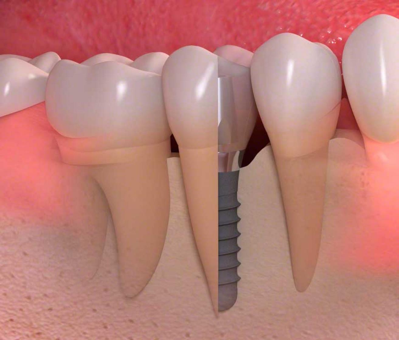 Titan Implantat Querschnitt